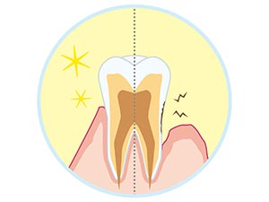 STEP4.歯周病の治療(歯を支えている組織の治療)