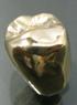ゴールド(小臼歯)